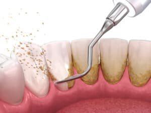 calculus removing from teeth