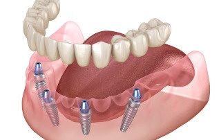 Dentures on four implants