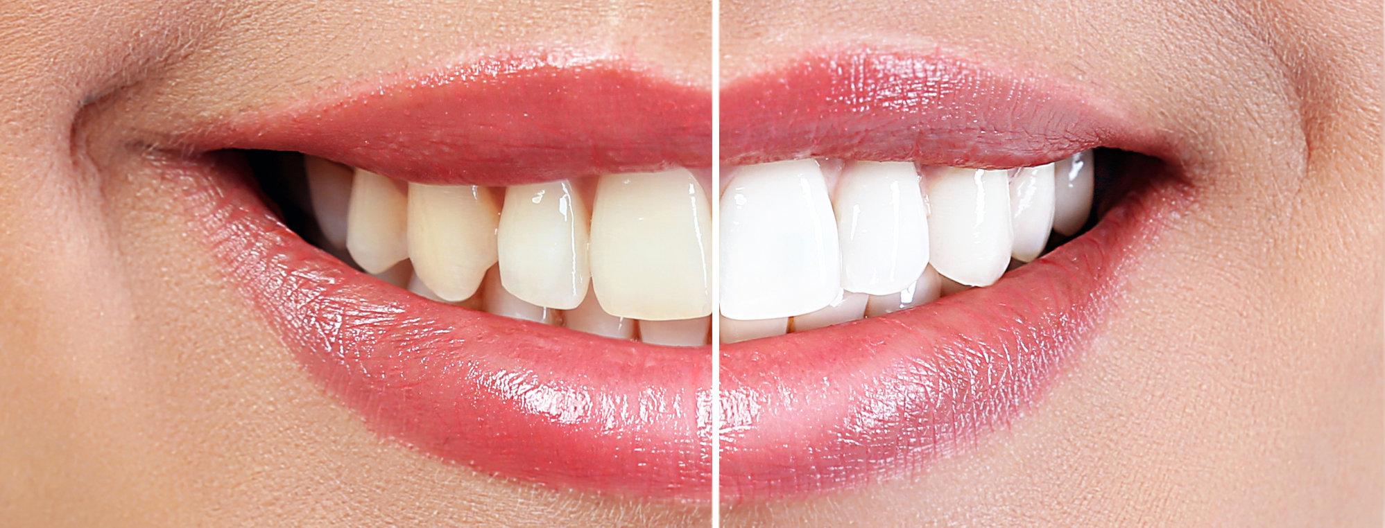 Izbjeljivanje zuba prije - poslije