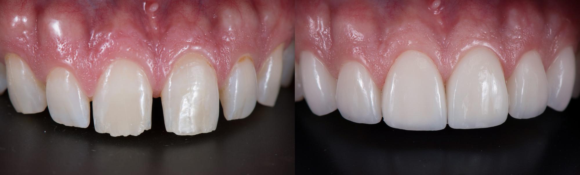 Veneere auf oberen Frontzähnen
